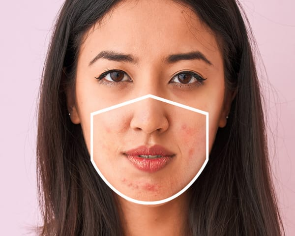 'Maskne': Face Mask Breakouts, Skin Irritation And What We Can Do To Protect Our Skin in a Pandemic